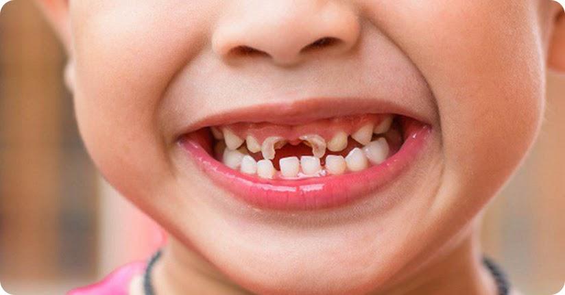 Giải mã giấc mơ thấy rụng răng đánh con gì?