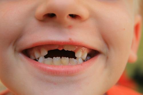Mơ thấy gẫy răng là điềm lành hay dữ? Ngủ mơ bị gãy răng đánh đề con gì?